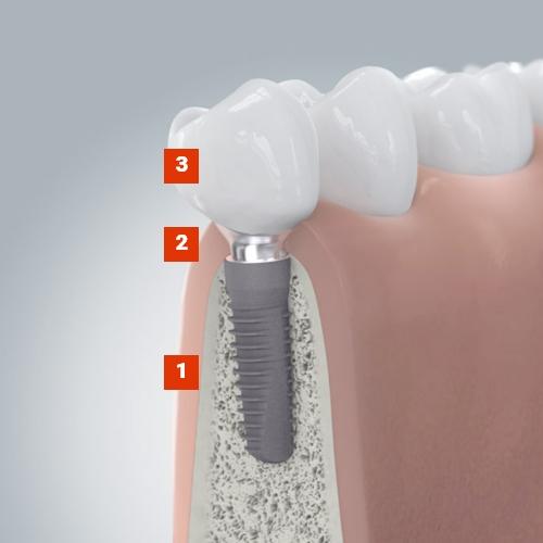 Grafik für den Aufbau eines Zahnimplantats in Berlin-Spandau.