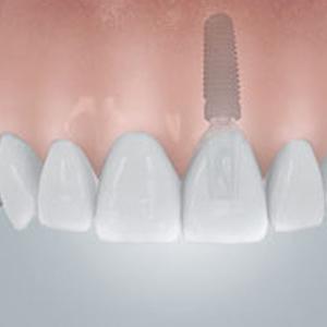 Symbolbild für ein Zahnimplantat aus Berlin-Spandau.