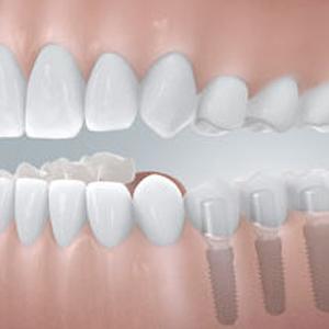 Zahnimplantate von Dr. Kurth & Partner in Berlin-Spandau schließen größere Zahnlücken.