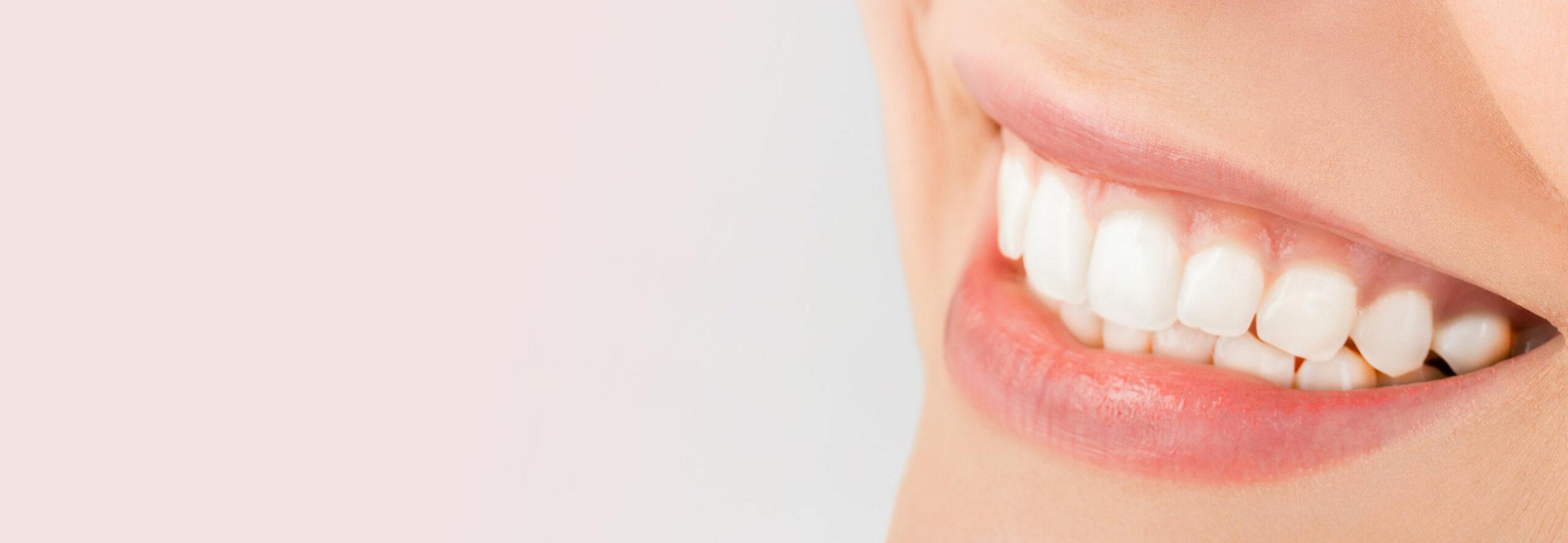 Weiße Zähne nach dem Zahnbleaching in Berlin-Spandau.