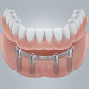 Vier Implantate halten dank Verbindungen die neuen festen Zähne besonders sicher.