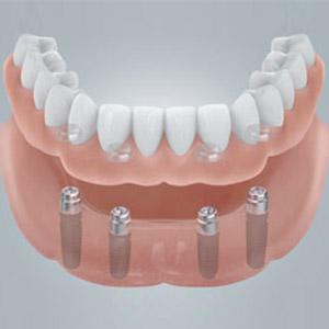 Der zahnlose Kiefer erhält in kurzer Zeit neue feste Zähne.