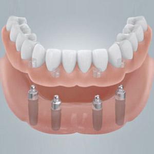 Vier Implantate geben neuen Zähnen festen Halt.
