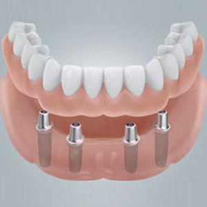Vier Implantate für neue feste Zähne an einem Tag in Berlin-Spandau.