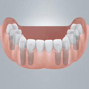 Feste neue Zähne für den zahnlosen Unterkiefer.