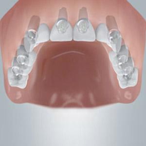 Vier bis sechs Implantate für den festen Halt von neuen Zähnen.
