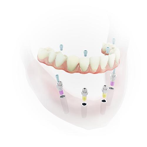 Grafik zeigt, wie 4 Implantate feste Zähne aus Berlin-Spandau halten.