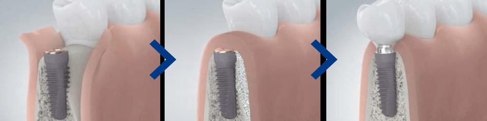 Ein Zahnimplantat aus Berlin-Spandau wächst sicher in den Kiefer ein.