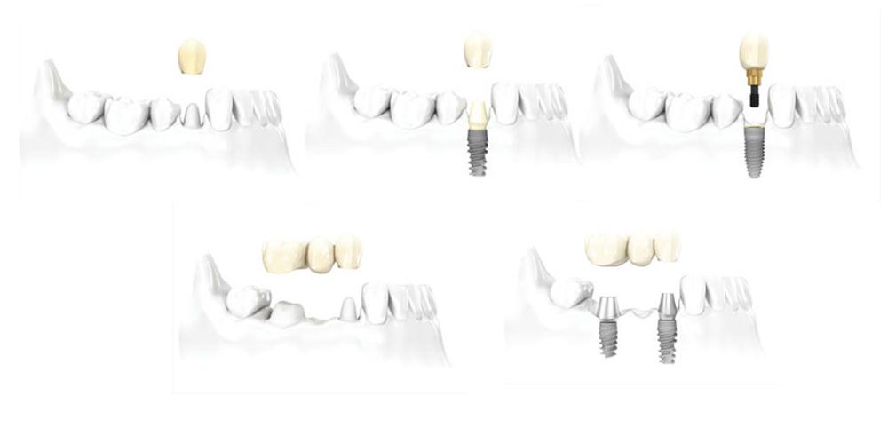 Modell wie Zahnersatz auf Implantaten eine Zahnlücke schließt.