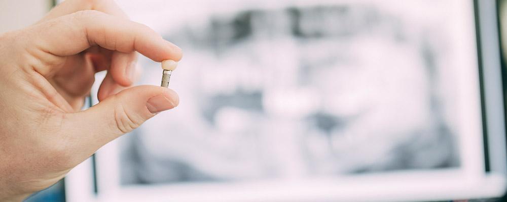 Ein Zahnimplantat aus Berlin-Spandau wird zwischen zwei Fingern gehalten.