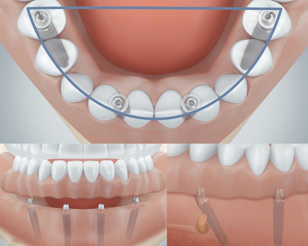 Vier Implantate für feste Zähne aus Berlin-Spandau.