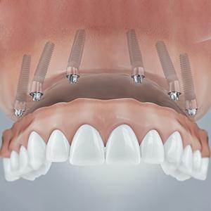 Sechs Zahnimplantate im Oberkiefer reichen für den festen Halt der neuen Zähne.