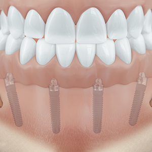 Vier Implantate im Unterkiefer geben dem zahnlosen Kiefer wieder eine vollständige Zahnreihe.
