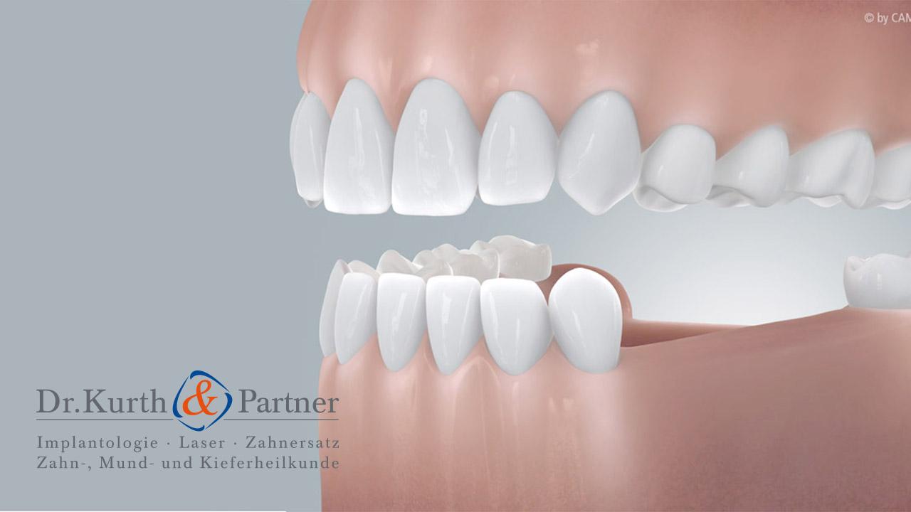 Grafik von zwei ästhetischen Zahnreihen, die dank Zahnimplantaten aus Berlin-Spandau wieder perfekt sitzen.
