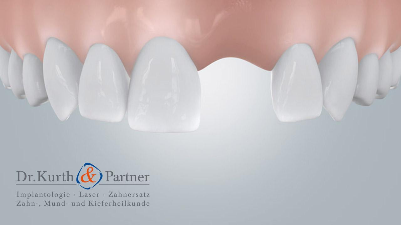 Grafik einer Zahnlücke, die der Implantologe aus Berlin-Spandau schließen kann.