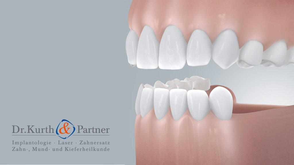 Grafik für ein Gebiss, das dank Zahnimplantaten aus Berlin-Spandau icher und fest hält.