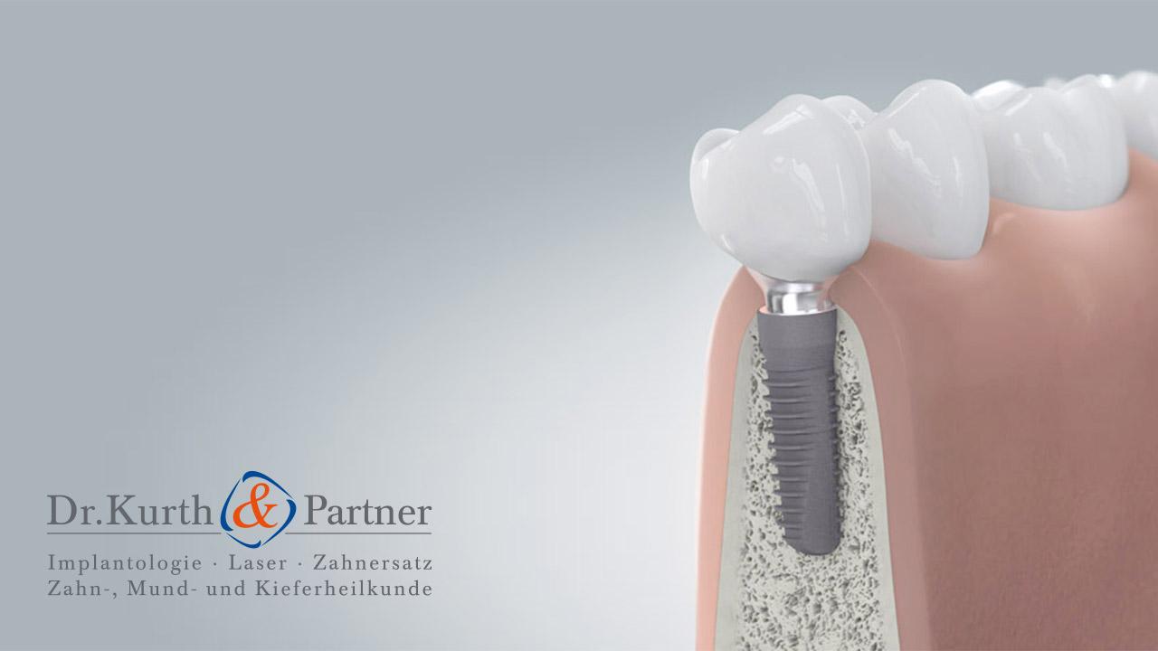 Patienteninformationen für Zahnimplantate aus Berlin-Spandau
