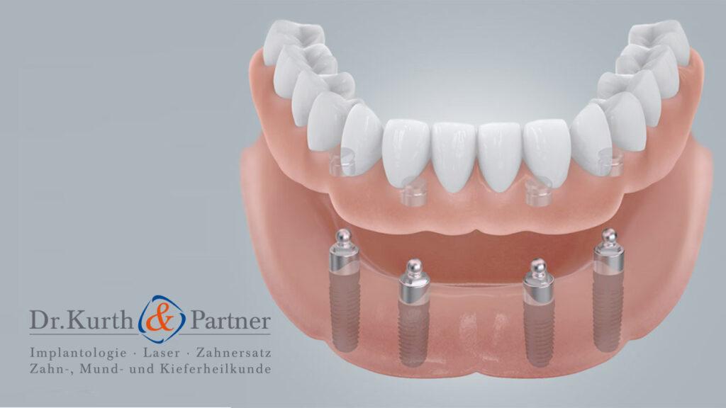 Modell für feste Zähne für den zahnlosen Kiefer in Spandau.